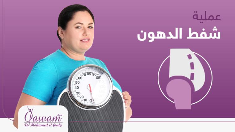 عمليات شفط الدهون فى مصر